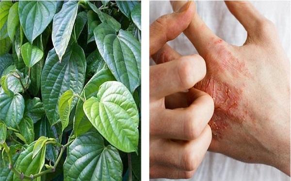 Sử dụng lá trầu không trong việc điều trị chứng á sừng