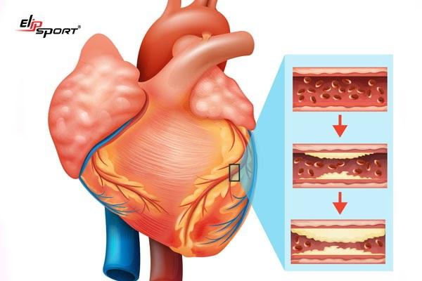 Xơ vữa động mạch là nguyên nhân thiếu máu cơ tim